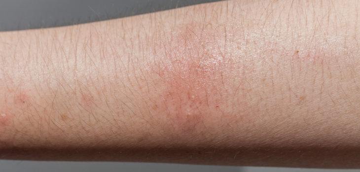 non-bite dog injuries